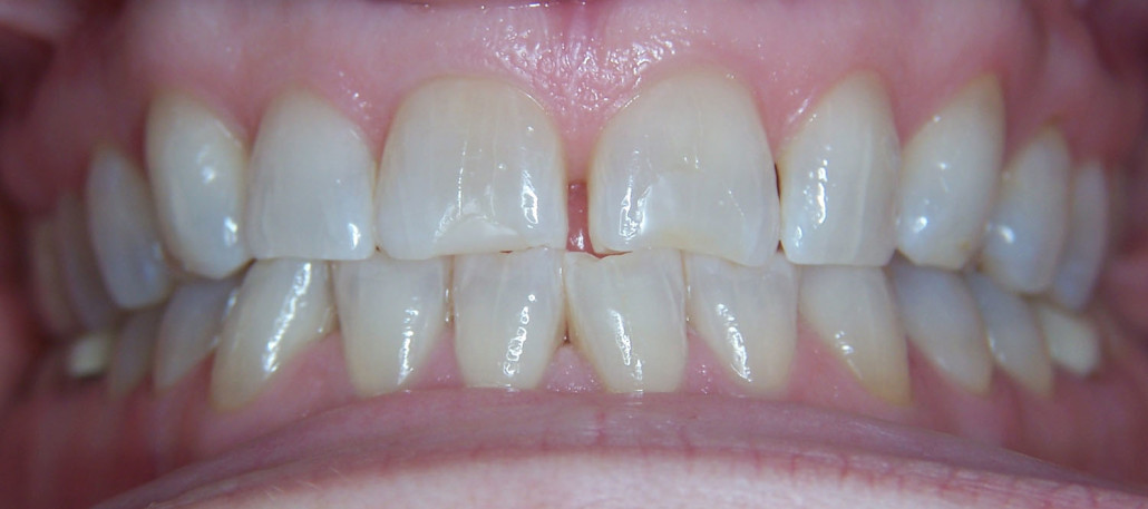 Veneers Before 3