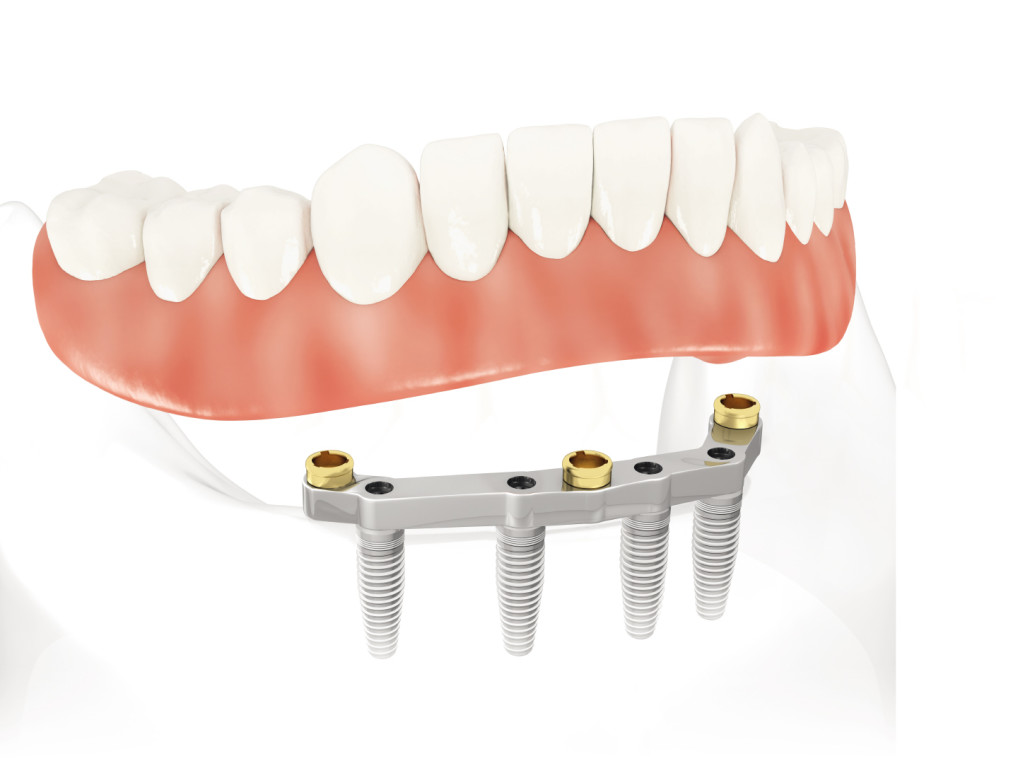implant supported denture put on implant loosen up denture spot